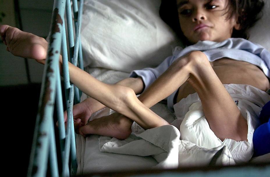 """Na Venezuela, devido à implantação do socialismo bolivariano, 4 de cada 10 crianças não crescem corretamente por causa da desnutrição. 15 de cada 100 crianças em estado de pobreza estão em desnutrição grave. Desses 15, mais de 5 morrem semanalmente. Segundo a """"Cáritas"""", 280.000 crianças poderiam morrer por desnutrição."""